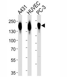 Western blot analysis of lysate from A431, HUVEC, PC3 cell line (left to right) using anti-EGFR antibody diluted at 1:1000 for each lane.