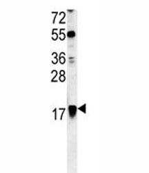 ARF1 antibody western blot analysis in Ramos lysate. Predicted molecular weight ~21kDa.