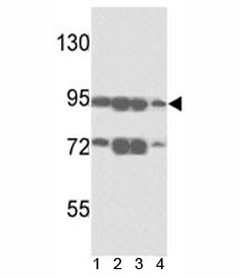 Western blot analysis of ABCB5 antibody and 1) A375, 2) K562, 3) A2058 and4)  HL-60 lysate. Predicted molecular weight ~90kDa.
