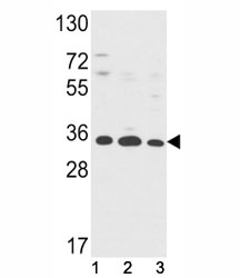 Western blot analysis of Annexin V antibody and (1) HepG2, (2) A2058, (3) T47D lysate. Predicted molecular weight ~36 kDa.