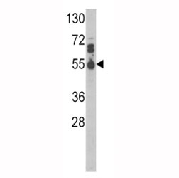 Western blot analysis of IL17RB antibody and MDA-MB468 lysate.