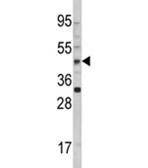 Western blot analysis of AADAC antibody and 293 lysate. Predicted molecular weight ~46 kDa.