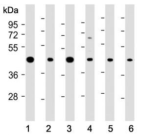 Western blot testing of human 1) A431, 2) MOLT4, 3) Jurkat, 4) PC-12, 5) mouse NIH3T3 and 6) mouse brain lysate with ASS1 antibody at 1:2000. Predicted molecular weight ~46 kDa.