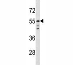 AKT1 antibody western blot analysis in T47D lysate