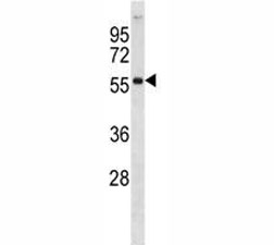 AKT2 antibody western blot analysis in 293 lysate. Predicted molecular weight: ~56kDa.