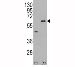 Western blot analysis of AKT3 antibody and 293 cell lysate (2 ug/lane) either nontransfected (Lane 1) or transiently transfected with the AKT3 gene (2). Predicted molecular weight: ~56kDa but can be observed from 60~65kDa.