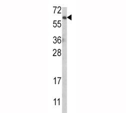 Western blot analysis of anti-AKT antibody and MCF-7 lysate.