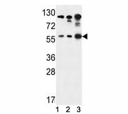 AKT1 antibody western blot analysis in (1) Jurkat, (2) A375, and (3) Y79 lysate