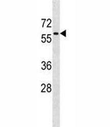 AMPK antibody western blot analysis in SK-BR-3 lysate