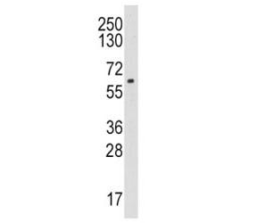 Western blot analysis of CYP19A1 / Aromatase antibody and HL-60 lysate. Predicted molecular weight ~58 kDa.