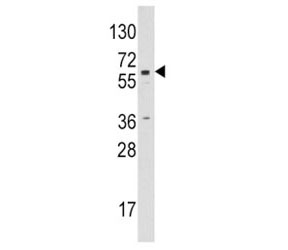 Western blot analysis of CYP19A1 / Aromatase antibody and Jurkat lysate. Predicted molecular weight ~58 kDa.