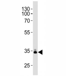 Western blot analysis of lysate from human plasma tissue lysate using ApoE antibody diluted at 1:1000. Predicted molecular weight: 34-37 kDa