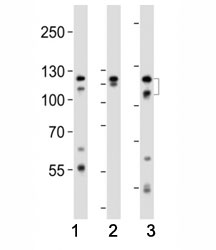 Western blot analysis of lysate from (1) HeLa, (2) K562 and (3) T47D cell line using FGFR2 antibody at 1:1000. Predicted molecular weight: 80-120 kDa.