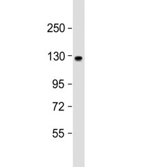 Western blot testing of human brain lysate with ACK1 antibody at 1:1000. Predicted molecular weight ~114 kDa.
