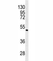 Western blot analysis of ANGPTL6 antibody and K562 lysate.