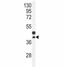 CTGF antibody western blot analysis in mouse bladder tissue lysate. Predicted molecular weight ~38kDa.