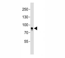 Western blot analysis of lysate from MCF-7 cell line using BRAF antibody. Predicted size 85-95 kDa
