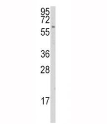 Western blot analysis of CYP1A1 antibody and K562 lysate. Predicted molecular weight ~58 kDa.