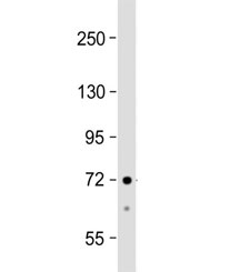 Western blot testing of human HepG2 cell lysate with ACSS3 antibody at 1:1000. Predicted molecular weight ~75 kDa.