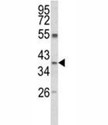 Western blot analysis of ARG1 antibody and MDA-MB231 lysate. Predicted molecular weight ~35kDa.