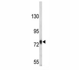Western blot analysis of Amyloid beta precusor protein antibody in T47D lysate. Predicted molecular weight 79~120kDa depending on glycosylation level.