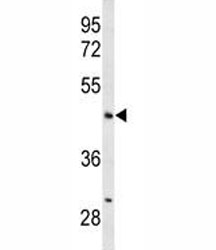 Western blot analysis of ANGPTL4 antibody and mouse liver tissue lysate. Expected molecular weight: 50-55 kDa.