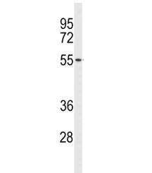 Western blot analysis of ACCN1 antibody and human NCI-H460 lysate. Predicted molecular weight ~58 kDa.