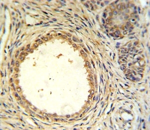 AMH antibody IHC analysis in formalin fixed and paraffin embedded prostate carcinoma.