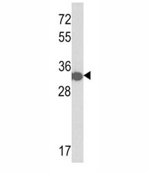 Western blot analysis of anti-His Tag antibody and a tagged recombinant protein.
