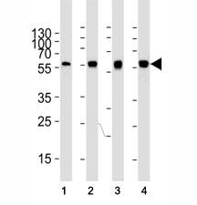 Western blot analysis of lysate from (1) HeLa, (2) U-87 MG, (3) mouse NIH3T3, (4) rat C6 cell line using ATG5 antibody at 1:1000. Predicted molecular weight ATG5: ~32 kDa; ATG5/ATG12 heterodimer: ~56 kDa.