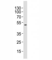 Western blot analysis of lysate from HT-29 cell line using AURKA antibody at 1:1000. Predicted molecular weight ~45 kDa.
