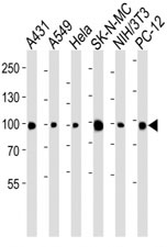 Western blot analysis of lysate from A431, A549, HeLa, SK-N-MC, mouse NIH3T3, rat PC-12 cell line using anti-HSP90 antibody diluted at 1:1000 for each lane.
