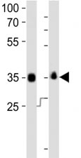 Western blot analysis of lysate from human NCCIT, mouse F9 cell line (left to right) using anti-SOX-2 antibody at 1:1000 for each lane.