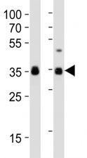 Western blot analysis of lysate from human NCCIT, mouse F9 cell line (left to right) using anti-SOX2 antibody at 1:1000 for each lane.