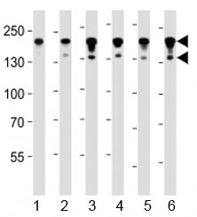 Western blot analysis of lysate from human 1) HeLa, 2) MCF-7, 3) HL-60, 4) KG-1, 5) Jurkat and 56) CEM cell lysate using ABL1 antibody at 1:1000. Expected molecular weight: routinely visualized at 123-150 kDa.