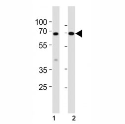 Western blot analysis of lysate from mouse (1) small intestine and (2) testis tissue lysate using Klf4 antibody at 1:1000. Predicted molecular weight: 50-60 kDa + possible ~75 kDa (phosphorylated form).