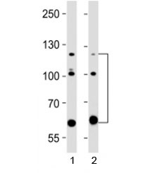 Western blot testing of ABL2 antibody at 1:2000 dilution. Lane 1: human A431 lysate; 2: human HeLa lysate; Expected molecular weight ~128 kDa, but routinely observed at 128-140 kDa with a possible ~61 kDa isoform.