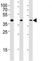 Western blot testing of CXCR4 antibody at 1:2000 dilution and human samples: Lane 1: skeletal muscle; 2: spleen ; 3: uterus lysate; Predicted band size : 40 kDa