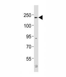 Western blot testing of Alk antibody at 1:2000 dilution + mouse cerebellum lysate; Predicted molecular weight: 190-220 kDa.