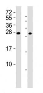 Western blot testing of RHOXF1 antibody at 1:2000; Lane 1: A2058 cell lysate, Lane 2: human ovary lysate. Predicted band size : 21 kDa