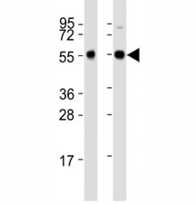 Western blot testing of Beclin-1 antibody at 1:2000 dilution. Lane 1: Zebrafish lysate; 2: ZF4 lysate; Predicted band size : 51 kDa.