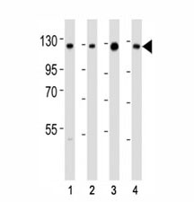 Western blot testing of anti-SIRT1 antibody at 1:2000 dilution. Lane 1: K562; 2: HeLa; 3: A549; 4: human testis lysate; Molecular weight: visualized from 80~120 kDa depending on post-translational modifications