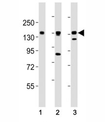 AXL antibody at 1:2000 dilution. Lane 1: NCI-H1299 lysate; 2: HeLa lysate; 3: L6 lysate; Predicted molecular weight is 104 kDa unglycosylated, 120-140 kDa with glycosylation