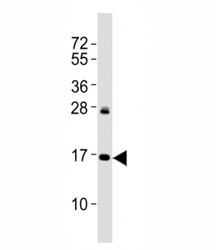 Western blot testing of p16INK4a antibody at 1:2000 dilution + HeLa lysate; Predicted molecular weight: 17 kDa.