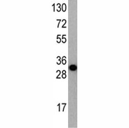 Western blot analysis of APG7 antibody and recombinant protein fragment (34KD).