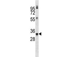 Anti-MBP antibody western blot analysis in ZR-75-1 lysate. Multiple isoforms visualized from 20~37 kDa.