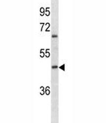 ABO antibody western blot analysis in K562 lysate