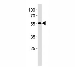 AKT antibody western blot analysis in HL-60 lysate