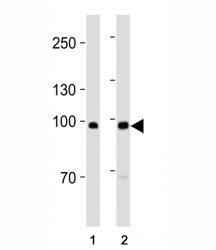 ACE2 antibody western blot analysis in MDA-MB-453, MCF-7 lysate. Predicted molecular weight: 90-100 kDa.