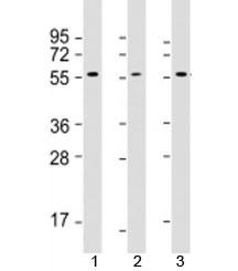 Western blot testing of 1) human MCF7, 2) human Jurkat and 3) rat PC-12 cell lysate with AKT2 antibody at 1:2000. Predicted molecular weight: 56 kDa.